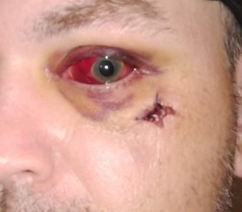 eye injury (2).jpg